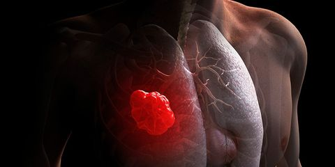 Vitamin B increase risk of lung cancer