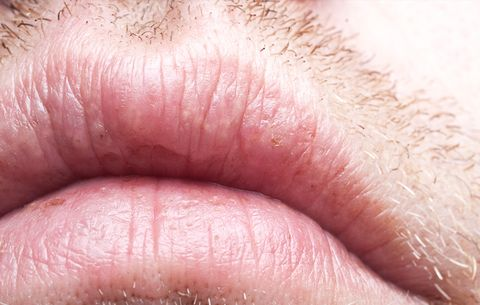dry cracking sides of mouth