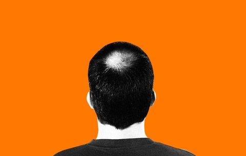 Dihydrotestosterone (DHT) Can Cause Baldness, But What Is It