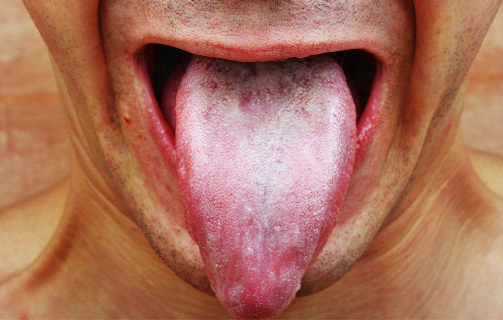 White Tongue Causes Should You Worry Mens Health