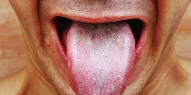 White Tongue Causes: Should You Worry?   Men's Health