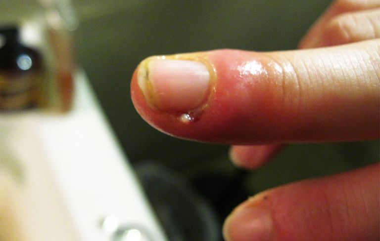 What Causes Hangnails and How to Treat Them | Men\'s Health