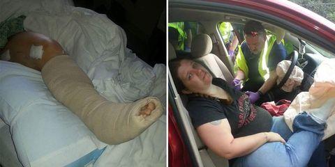 woman accident common car habit