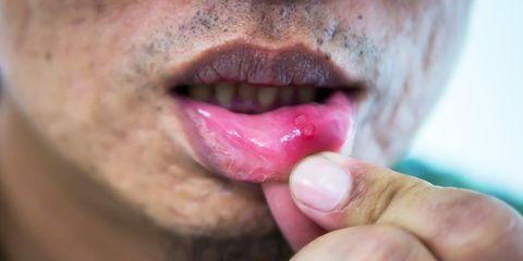 workout supplement may halt herpes