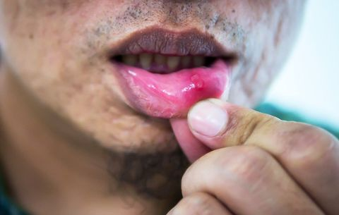 Glutamine Supplements May Reduce Herpes Outbreaks | Men's Health