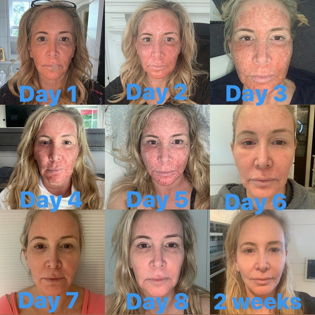 'RHOC' Shannon Beador Just Shared Photos Of Her Skin Recovering From CO2 Laser Treatment