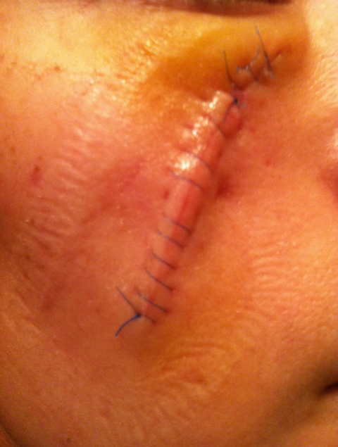 4 Women Share Exactly What Getting Skin Cancer Surgery Is Like