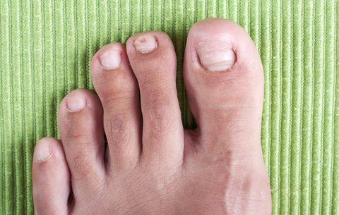 Wrastający paznokieć u nogi