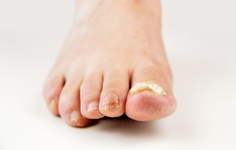 Toenail Fungus Getty Images If Your Toenails