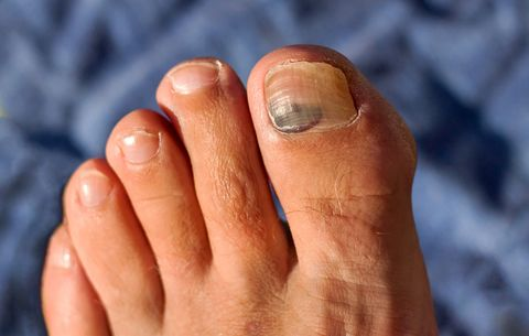 Weird Things That Can Happen To Your Toenails And Feet | Women's Health