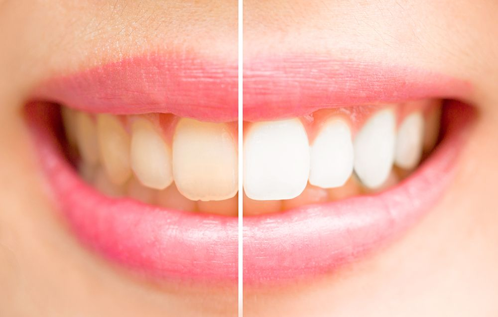 This Purple Toothpaste Actually Makes Your Teeth Whiter