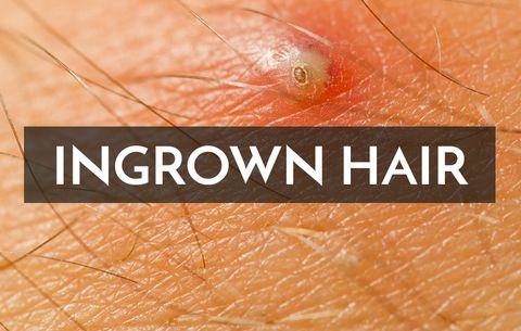 Vagina hair plucking Is chin
