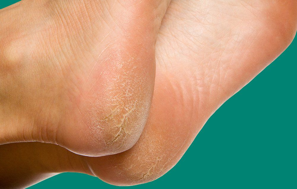peeling skin on soles of feet