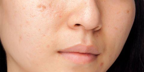 adult acne in women