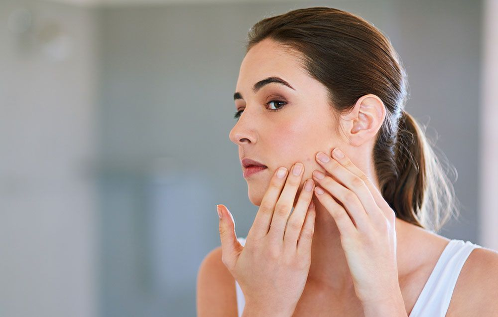 Home remedies to dry out pimples