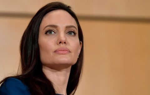 Angelina Jolie Bell's Palsy Di...