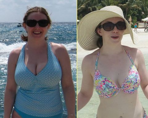 How Getting Breast-Reduction Surgery Changed My Life for the Better