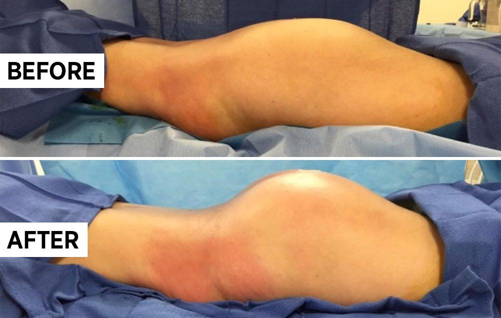 Before and after pictures of buttock fat transfer