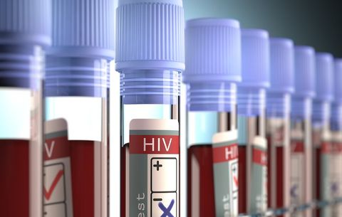 This Woman Had 9 False Positives for HIV While She Was