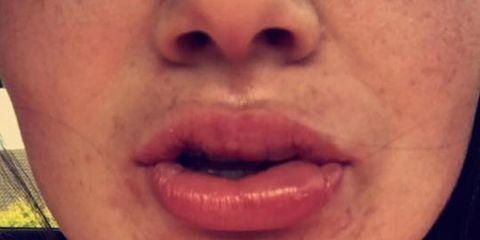 swollen lip from teeth whitening treatment
