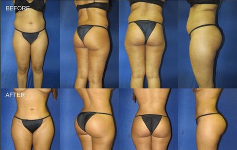 0730ab9e29c This Doc Is Posting Pictures and Videos of Brazilian Butt Lifts He ...