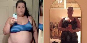 Elizabeth Wolinksy gastric bypass