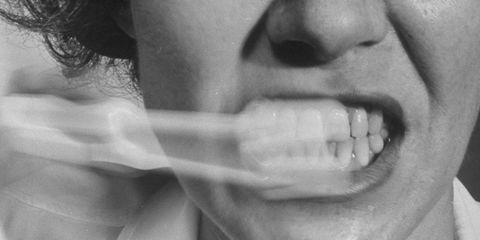 white spots teeth