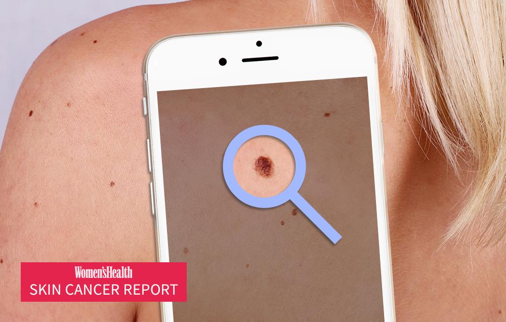 Do Skin Cancer Screening Apps Really Work Women S Health