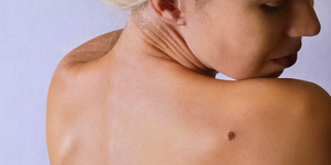 skin cancer self check