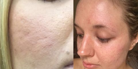derma roller i tried it at home and here's what happened to my skin