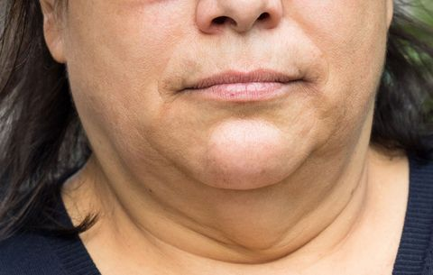 how to lose weight off your face and chin
