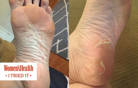 bc0fa705cb664 Baby Foot Peel: I Tried It And Here's What Happened | Women's Health