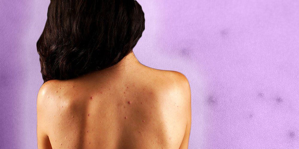 Back Acne Dr Pimple Popper Shares How To Treat Women S Health