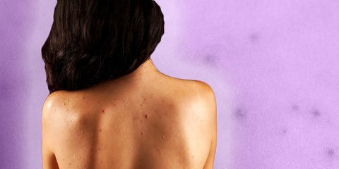 back and chest acne dr pimple popper advice