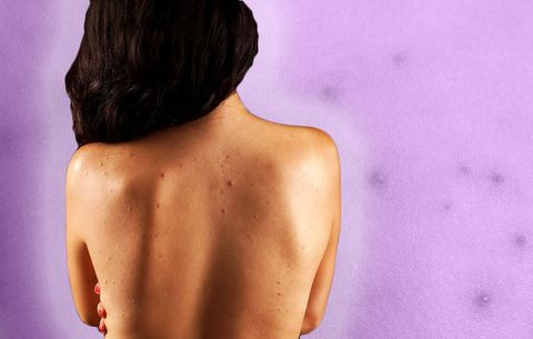Back Acne Dr Pimple Popper Shares How To Treat Women S