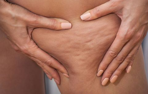 What You Need To Know About The Connection Between Cellulite And Weight Loss Women S Health