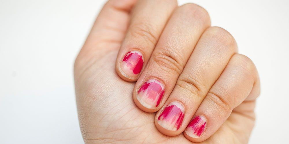 Chipped Nail Polish: Surprising Reasons Why Your Polish Keeps ...