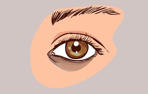 53085a6f3d1 How To Treat Dark Eye Circles   Women's Health