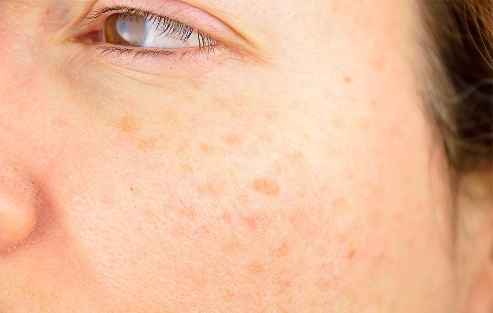 How To Get Rid Of Dark Spots, According To Dermatologists   Best Dark Spot  Corrector