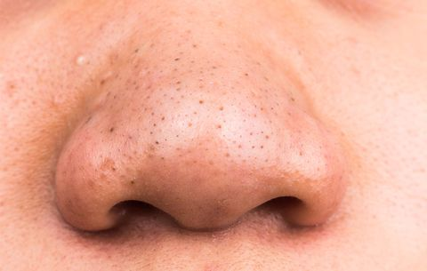 picture of nose with blackhead