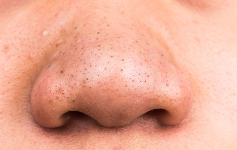Ask dr pimple popper how to treat blackheads womens health blackheads on nose solutioingenieria Images