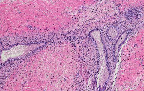 5 Common Symptoms of Endometriosis | Women's Health