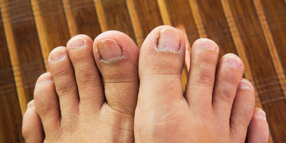 Weird Things That Can Happen To Your Toenails And Feet | Women\'s Health