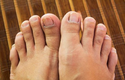 Weird Things That Can Happen To Your Toenails And Feet