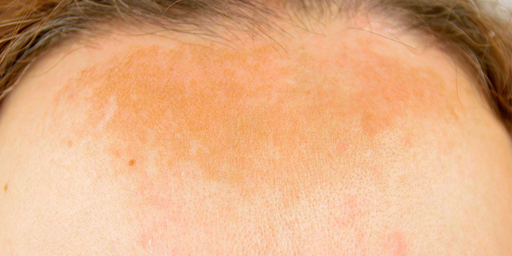 hyperpigmentation facts causes melasma