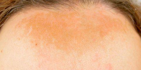 hyperpigmentation facts causes melasma