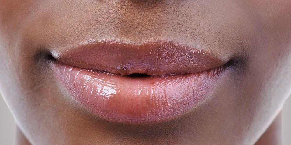 On lips bumps little White Bumps