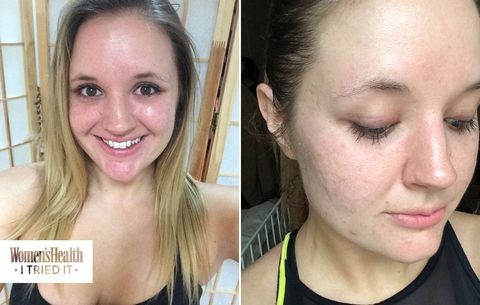 Before And After 10 Step Skincare Routine