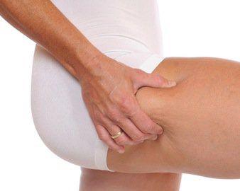 3 Tricks to Banish Cellulite