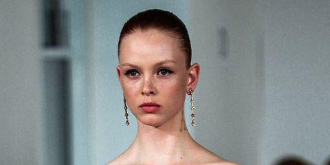1504-freckles.jpg